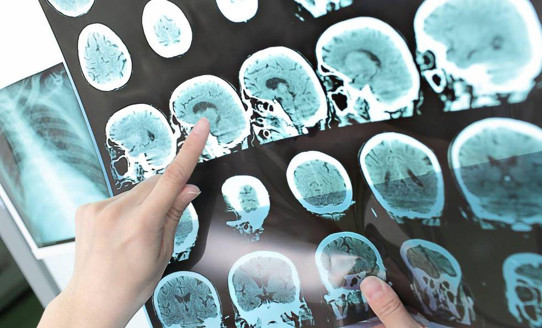 Tomografia e Ressonância podem auxiliar no diagnóstico do Alzheimer